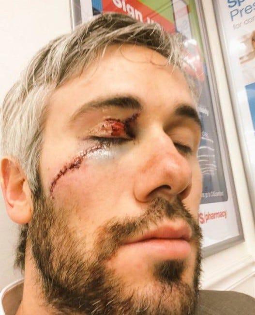 drew-miller-scar