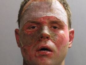 Florida Man Smartly Smoked Crack After His Face Was Burned By A Car Fire