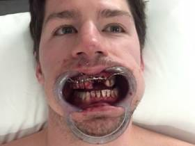 Our Friend Logan Couture Is Having Some Work Done On His Mouth