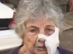 An 80-Year-Old Woman Fought Off A Rabid Bobcat With A Garden Sickle