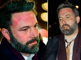 Ben Affleck's Face Rash Is Way Too Much To Take