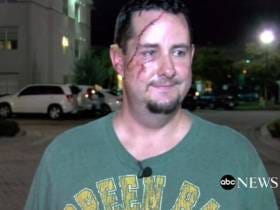 Does This Look Like the Face Of A Guy Who Got Uppercutted By A Bear?