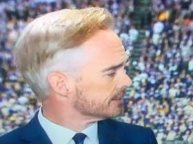 The Biggest Star In The NFL Today Is Joe Buck's Beautiful Hair Cut