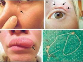 Lady Can't Figure Out Why Her Pimple Is Moving All Over Her Face, Whoops It's A Parasitic Worm